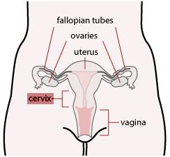 Cervical Cancer Surgery