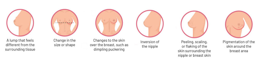 signs symptoms of breast cancer