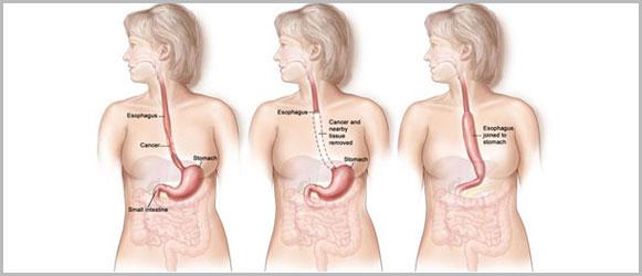 Gynecological Cancer Surgery